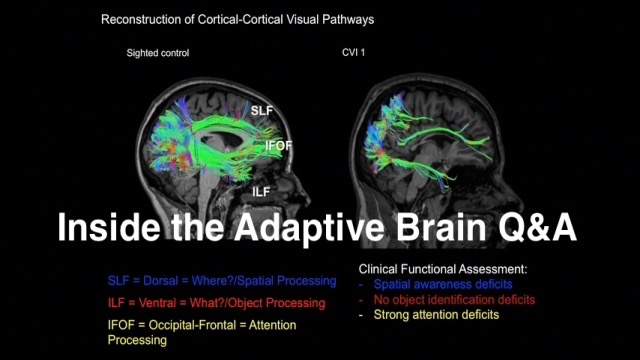 Inside the Adaptive Brain Q&A